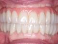 All-on-four-dental-implant-2