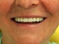 all-on-6-zagreb-dental-9