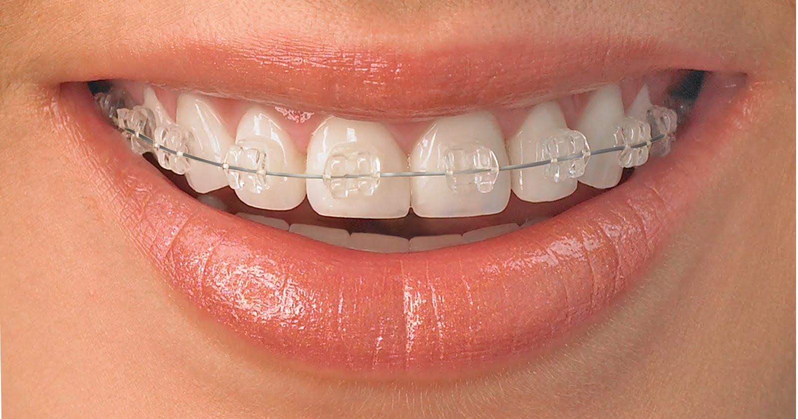Estetske bravice - bijele bravice - ortodontska terapija