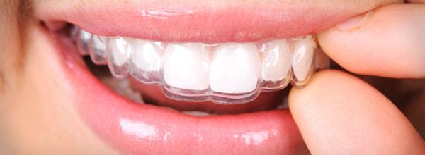 Prozirni aparatić - ortodoncija