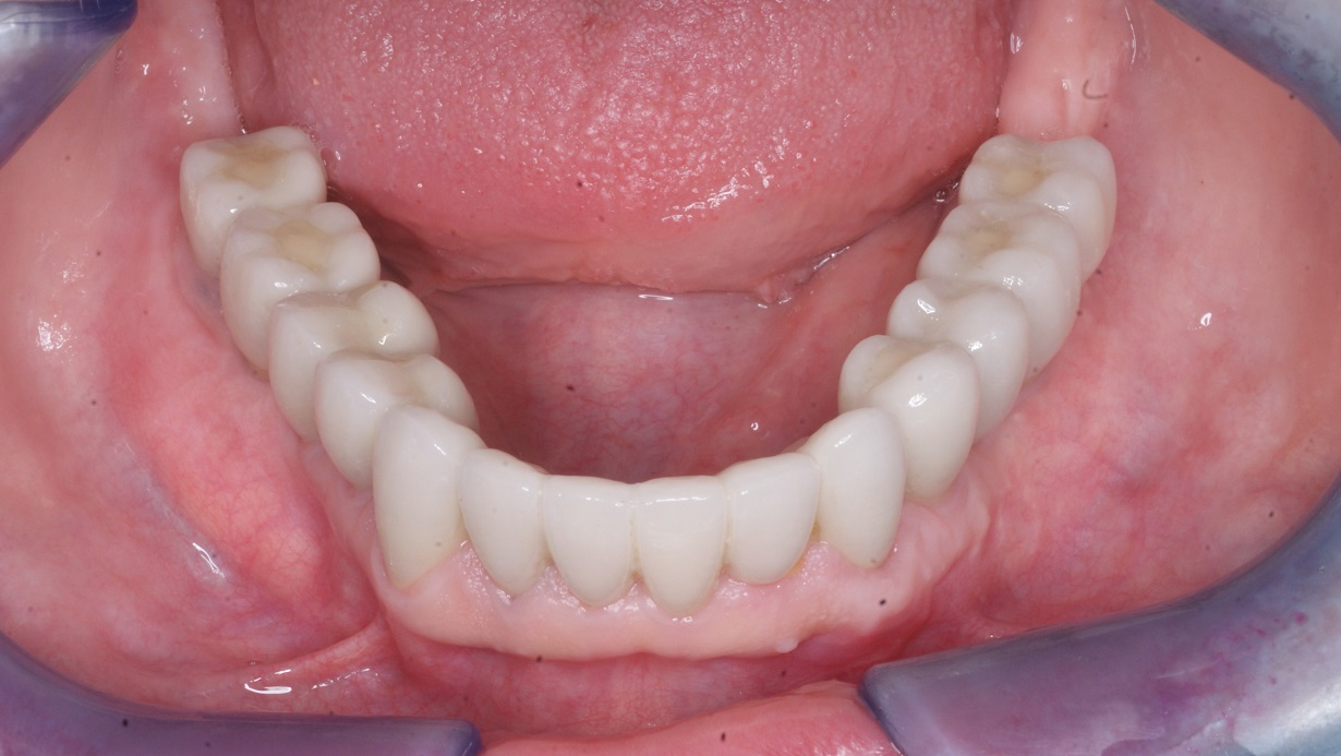 All-on-four-dental-implant-3