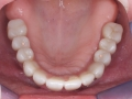 All-on-four-dental-implant-4