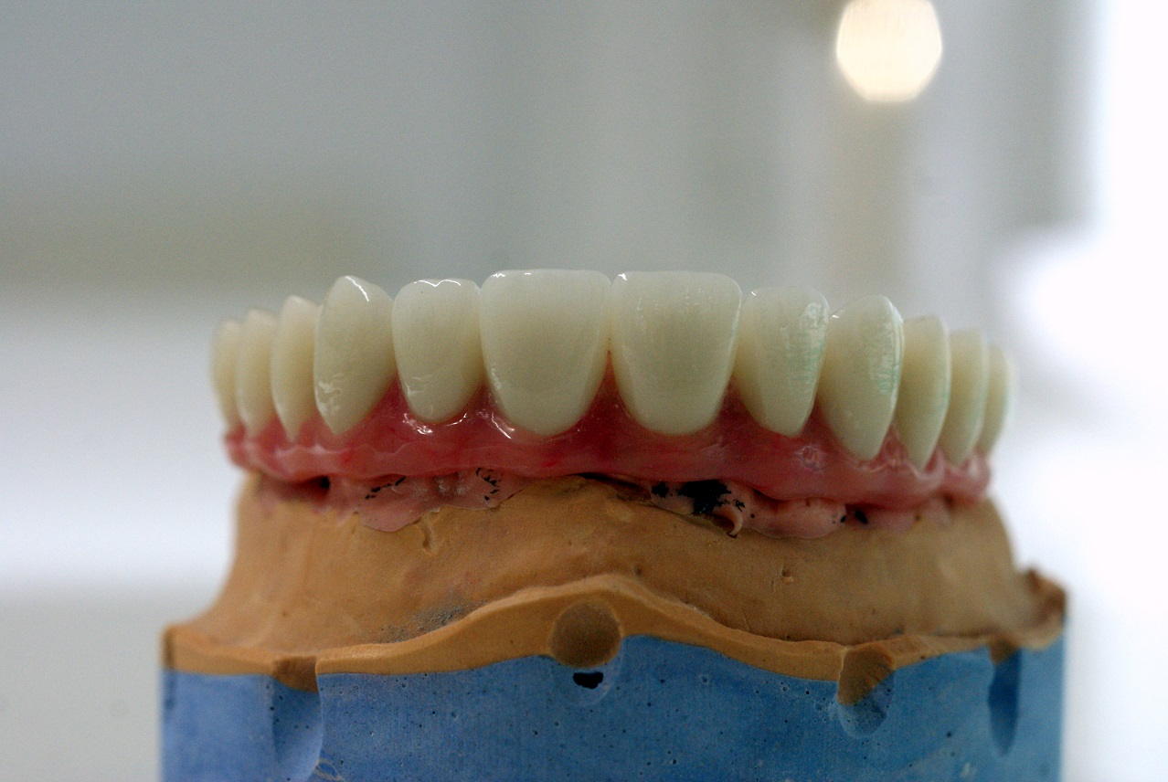 all-on-6-zagreb-dental-2