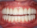 all-on-6-zagreb-dental-8