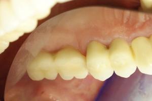 zubni_dentalni_implantat__sinus_lift_6