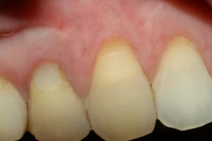 Konačni izgled zubnog mesa oko zuba nakon cijeljenja