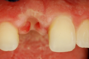 Nedostatak zuba u estetskoj zoni