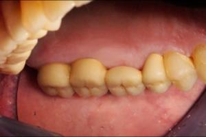 Keramičke krunice na zubima - nakon postave i cementiranja
