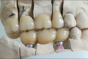 Keramičke krunice na implantatima i zubima - model