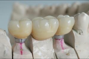 Keramičke krunice na implantatima