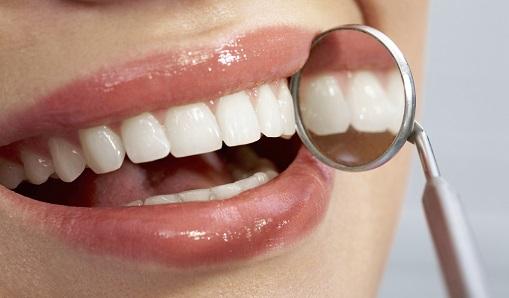 Ciscenje zuba interdentalnom cetkicom