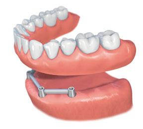Proteza na implantate