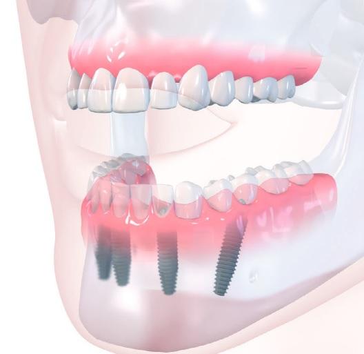 all-on-4-implantati