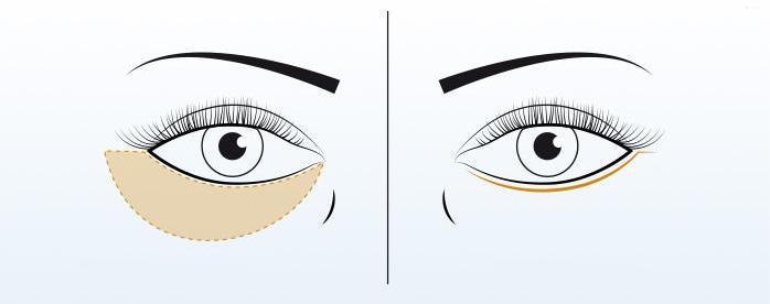korekcija-ocnih-kapaka