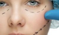 blefaroplatika - korekcija ocnih kapaka