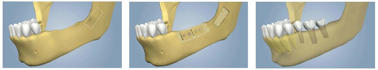 Nadogradnja kosti za ugradnju implantata