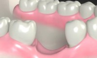 gubitak kosti nakon vađenja zuba
