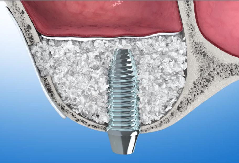 Ispovremena postava implantata sa podizanjem dna sinusa i augmentacijom kosti